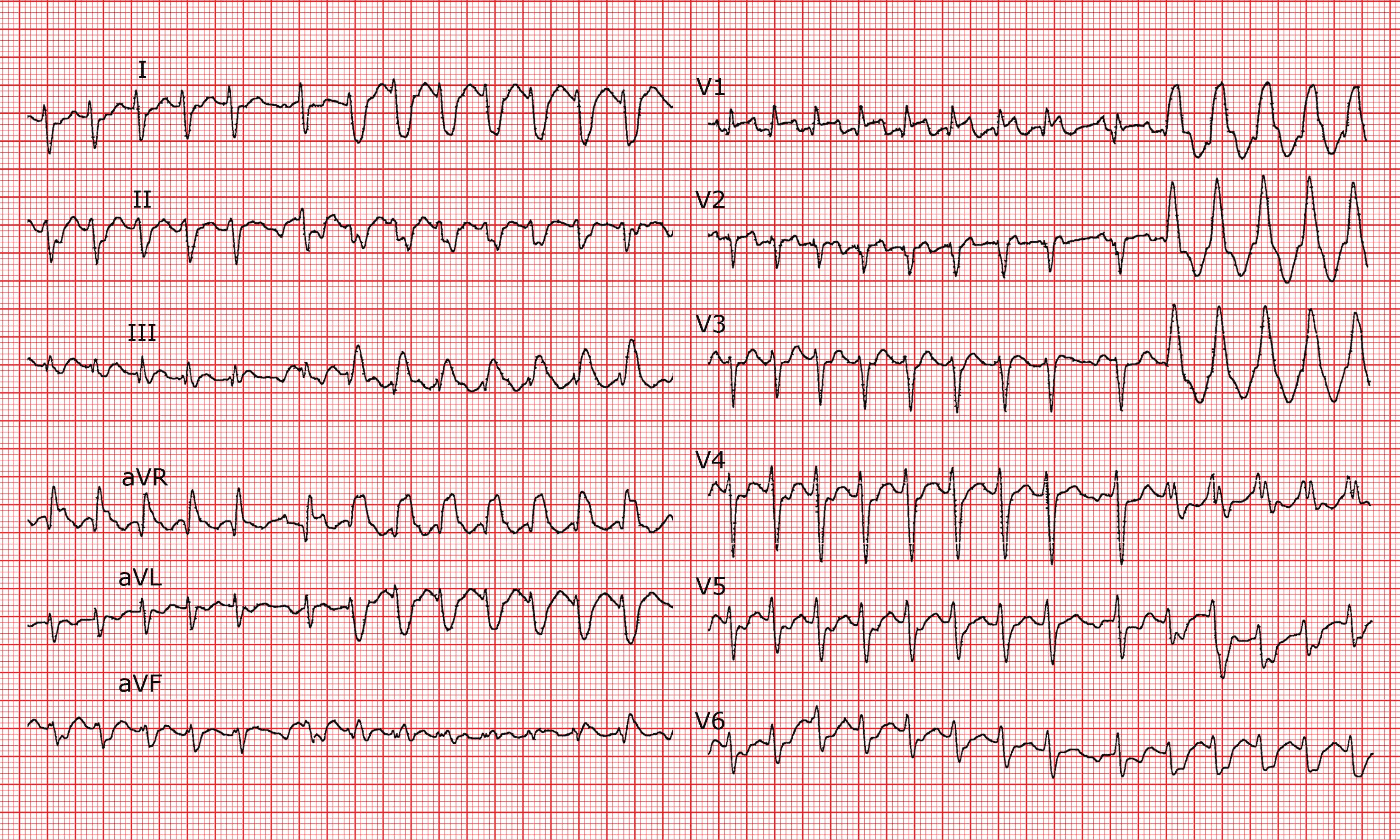 Cardio-FR — Fribourg's Cardiology Database
